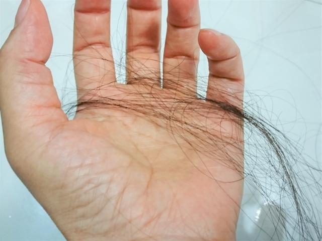 この頃抜け毛が多くて、悩んでいる女性が多い!